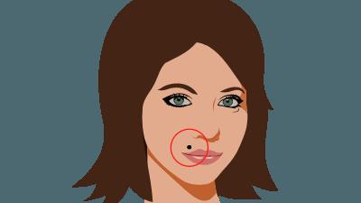 mole above lips